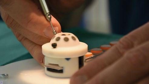 Retinal surgery with force sensitive peeling hook 02