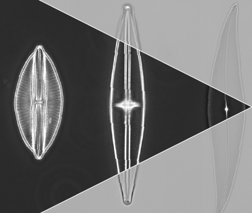 Diatoms in Brightfield and Phase Contrast