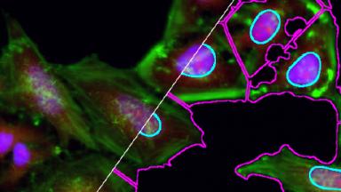 Cell Segmentation in ImageJ-Fiji