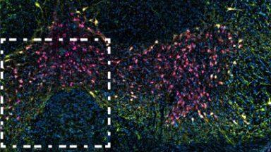 DEVILS workflow applied to 3 channel lighthseet cleared brain