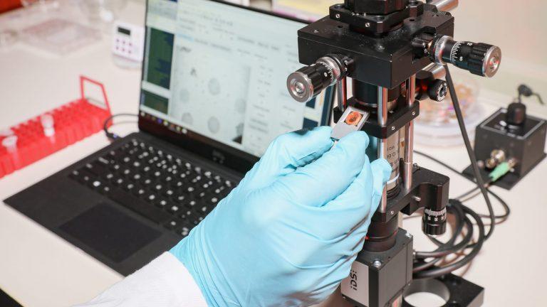 Un appareil portable pour la détection rapide du sepsis, 22 jan. 2020