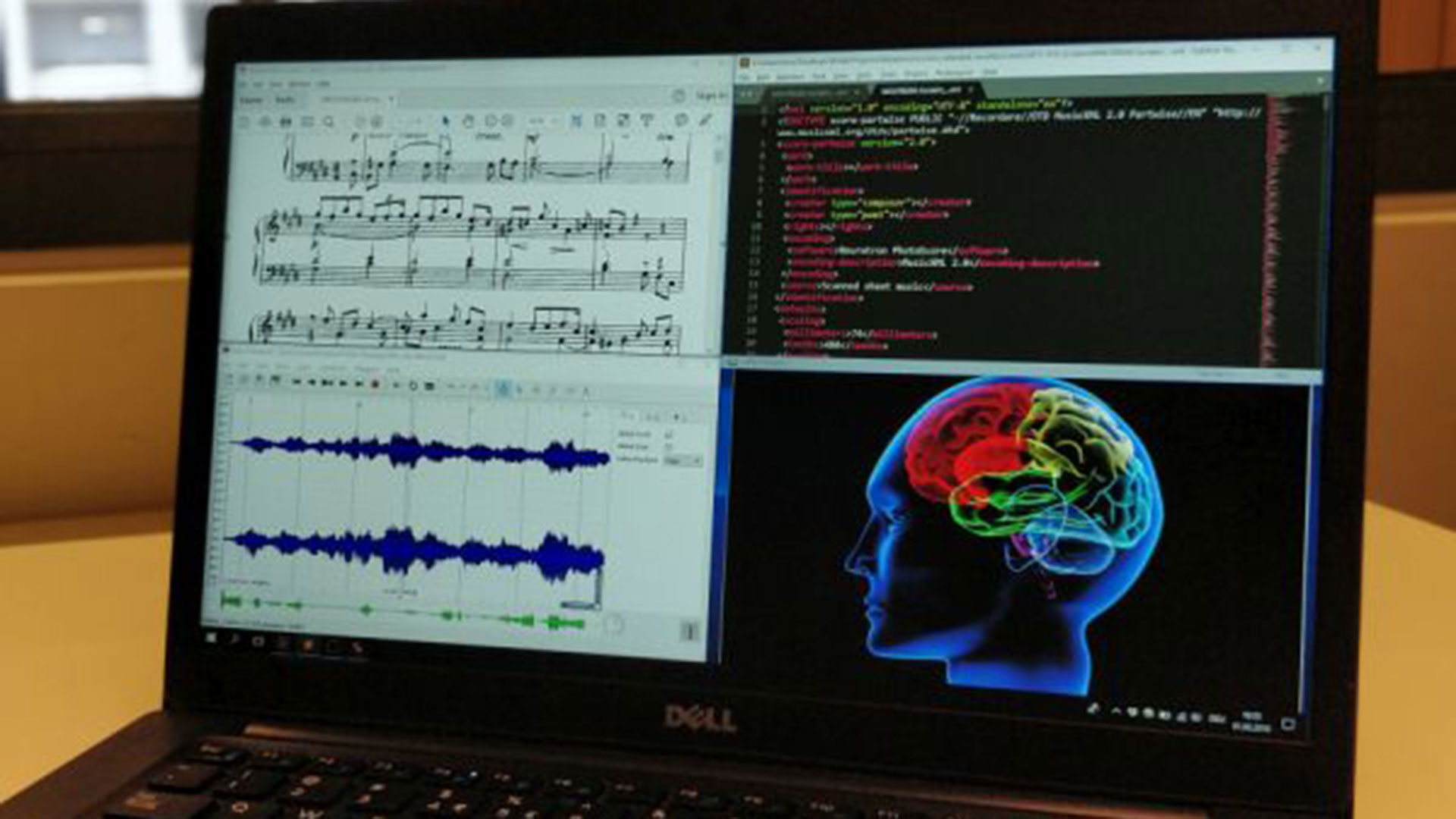 Close up of computer screen with music notes and a brain in colour