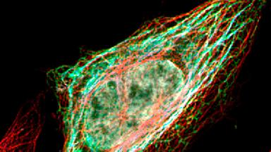Immunofluorescence image showing the endoplasmic reticulum proteins CLIMP63 (Green), TMEM214 (blue), miicrotubules (Red) and the nucleus (grey) The higher level of i association between ER and Microtubules is triggered by overexpressing TMEM214 | © EPFL Van der Goot Lab