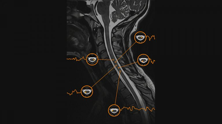 A window into the spinal cord that never sleeps - Nawal Kinany - Vote 24